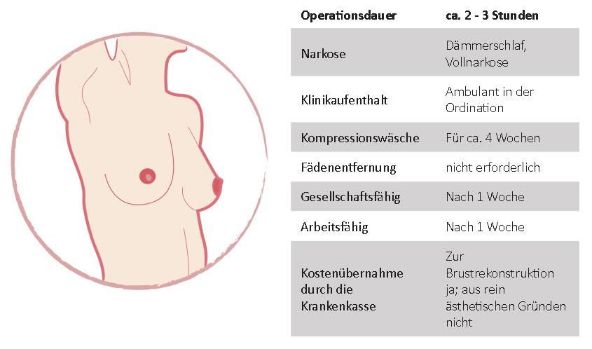 Brustvergrösserung mit Eigenfett Wien
