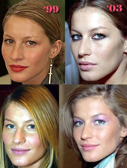 Schönheitschirurgie